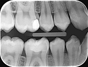 Radiografie retroalveolara interproximala x4 (Bite wings x4)